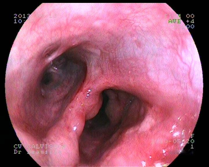 Endoscopie (fibroscopie) - Clinique Vétérinaire des Docteurs ...
