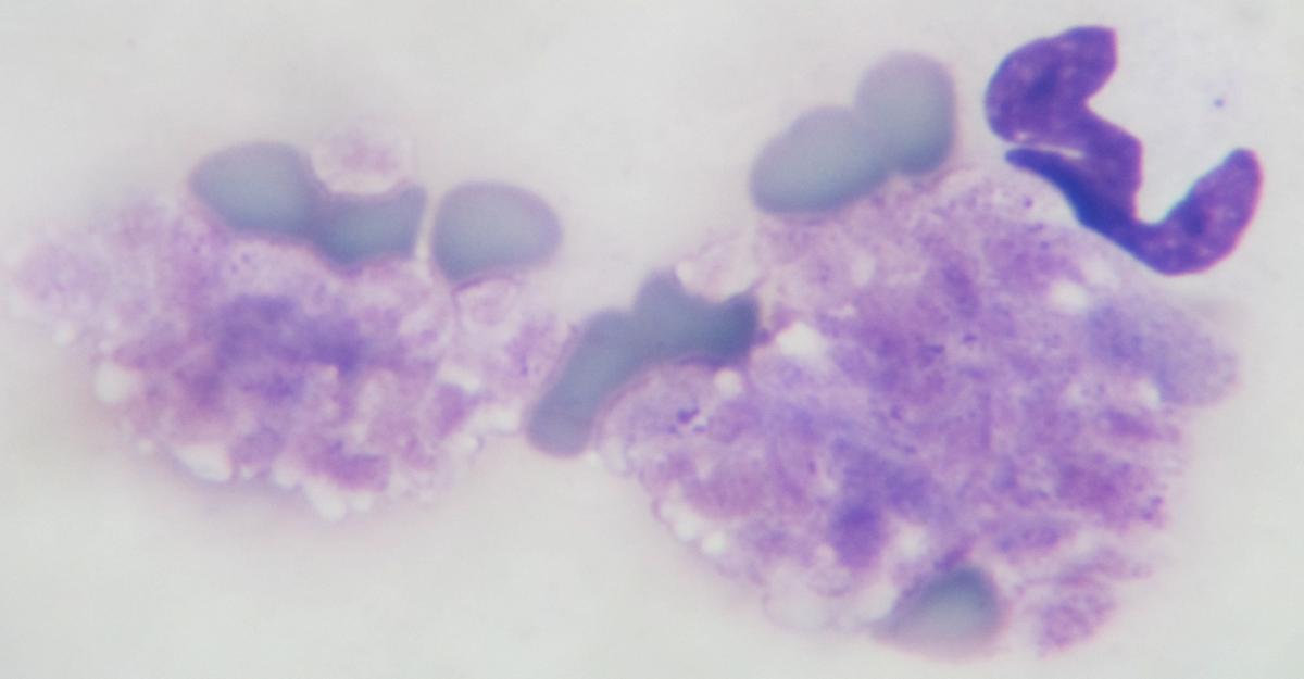chat embolie pulmonaire