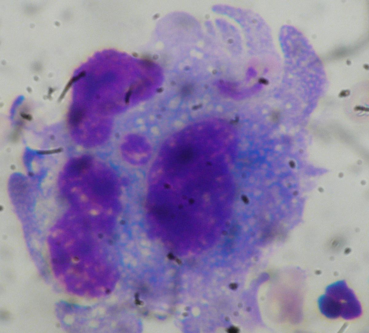 liquide pleural cytologie
