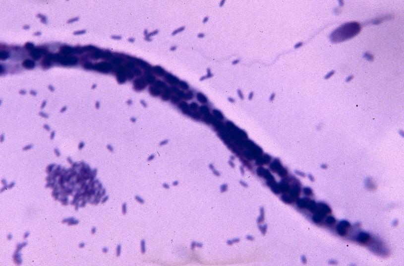 Les chats sont moins sensibles que les chiens à la dirofilariose  6%  seulement des larves inoculées au chat se transforment en vers adultes,  contre plus de