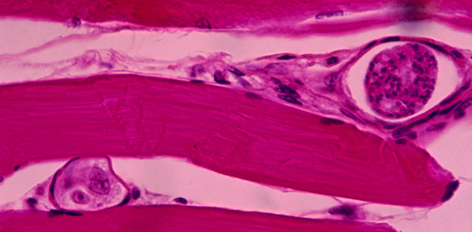 baisse leucocytes symptômes